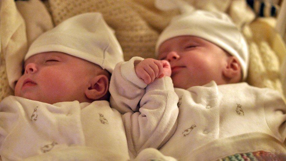 Kijktip: Focus: Het geheime leven van tweelingen