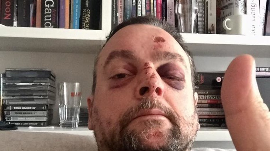 Arie Koomen flink gewond aan hoofd