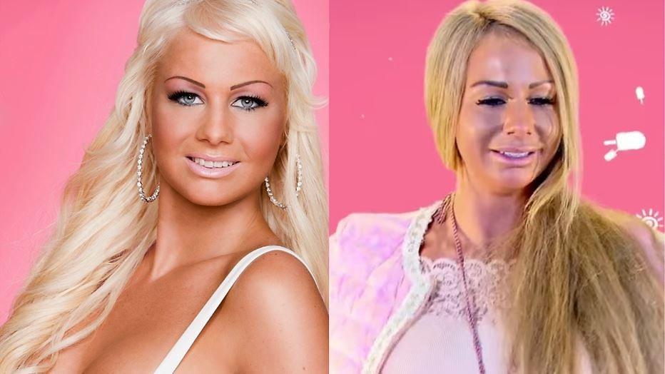 Barbie laat cosmetische ingreep live filmen