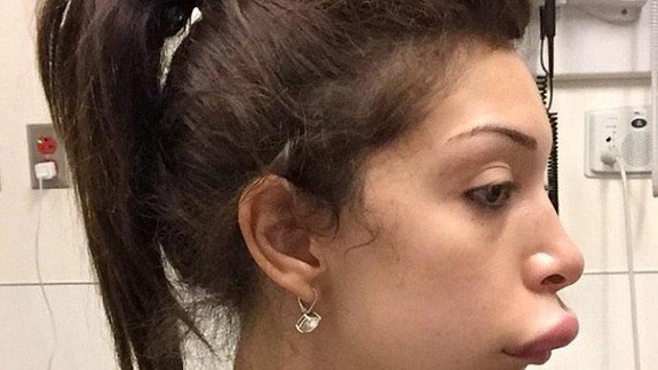 Plastische chirurgie mislukt nogal bij Farrah Abraham