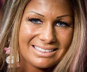 Barbie laat foto van gehavend gezicht zien